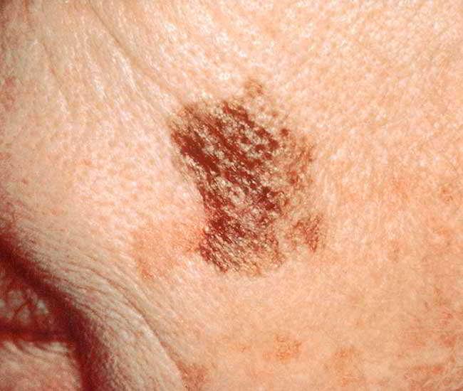 cancerul pielii