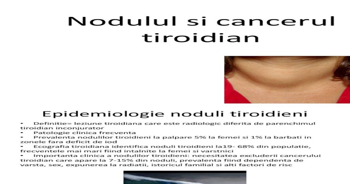 carcinom papilar tiroidian conventional)
