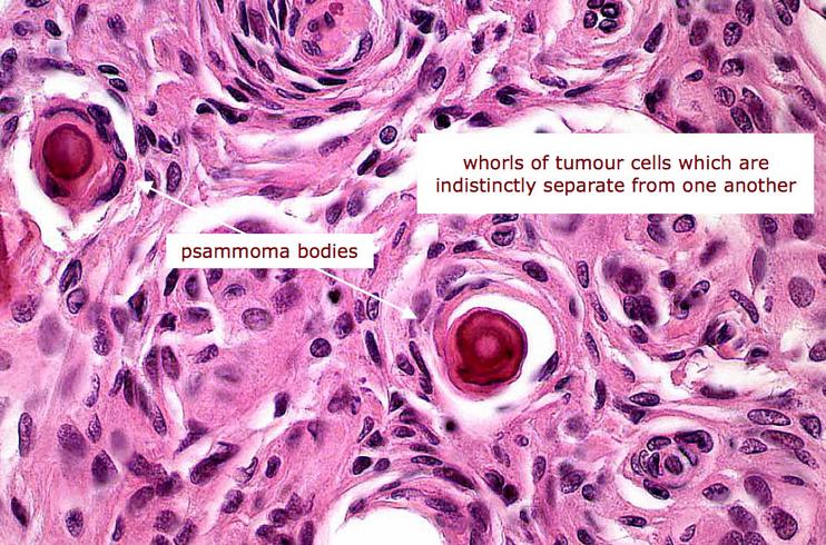 carcinom tiroidian folicular)