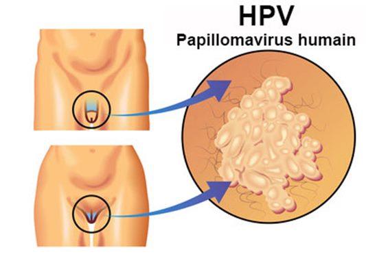 cause du papillomavirus humain)
