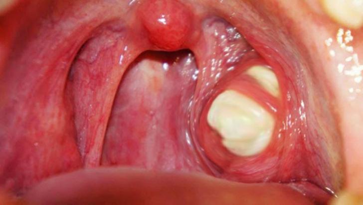Respiraţie urât mirositoare - semne și simptome