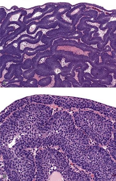 inverted papilloma bladder ck20