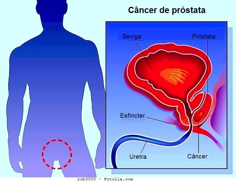 cancer de prostata maligno tem cura