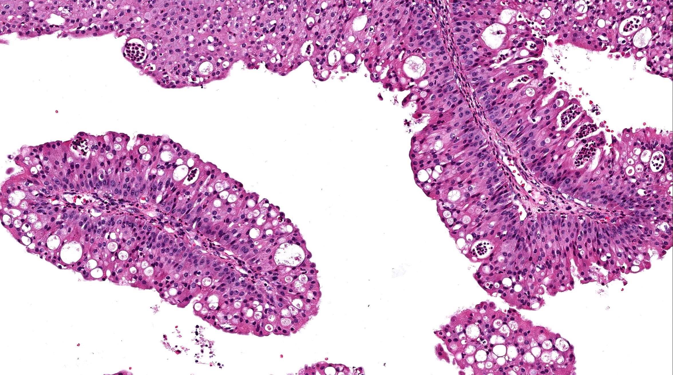 papillary urothelial hyperplasia icd 10