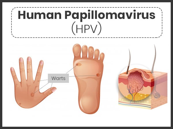 human papillomavirus signs and symptoms