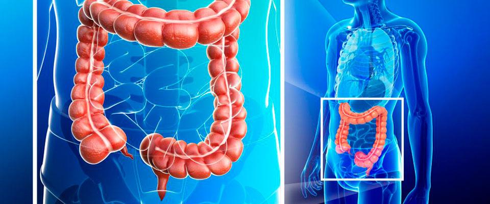 cancer maligne intestin)