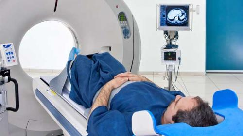 cancer renal stadii)