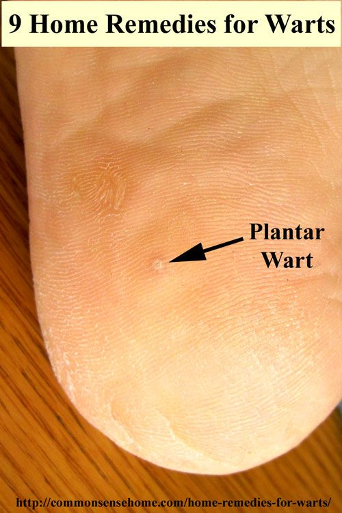 wart on foot home remedy)