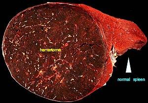 Ce este entraparea nervului cervicale