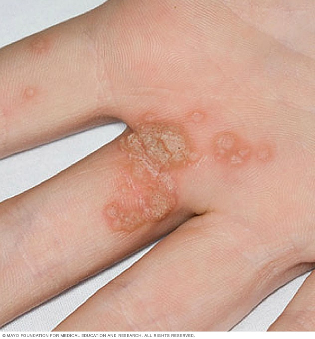 warts on hands from stress)