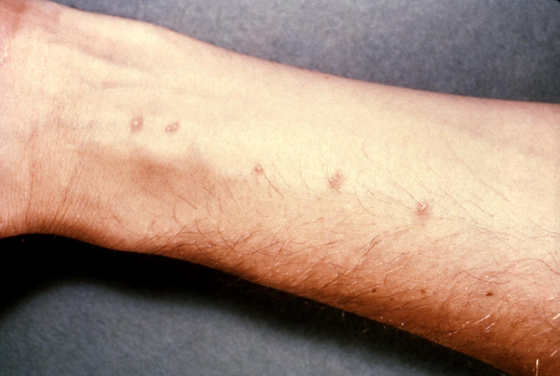 cdc schistosomiasis