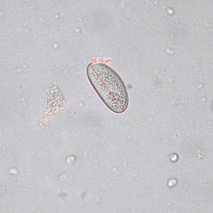 enterobius vermicularis estadios)
