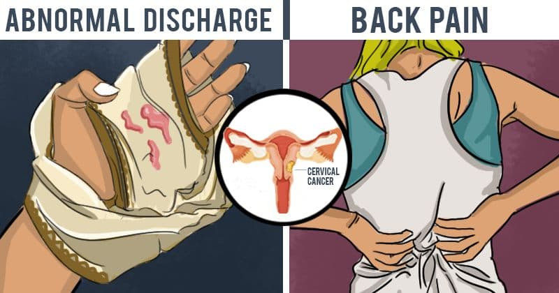 cervical cancer brown discharge)