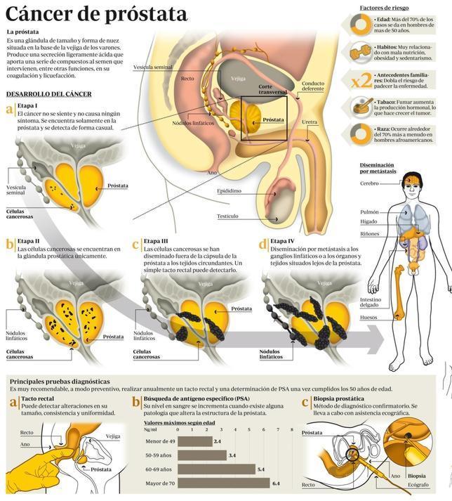 cancer de prostata metastasis osea sintomas