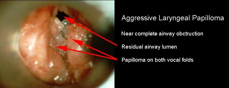 treatment of juvenile laryngeal papillomatosis)