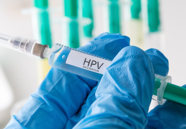 hpv virus urine test
