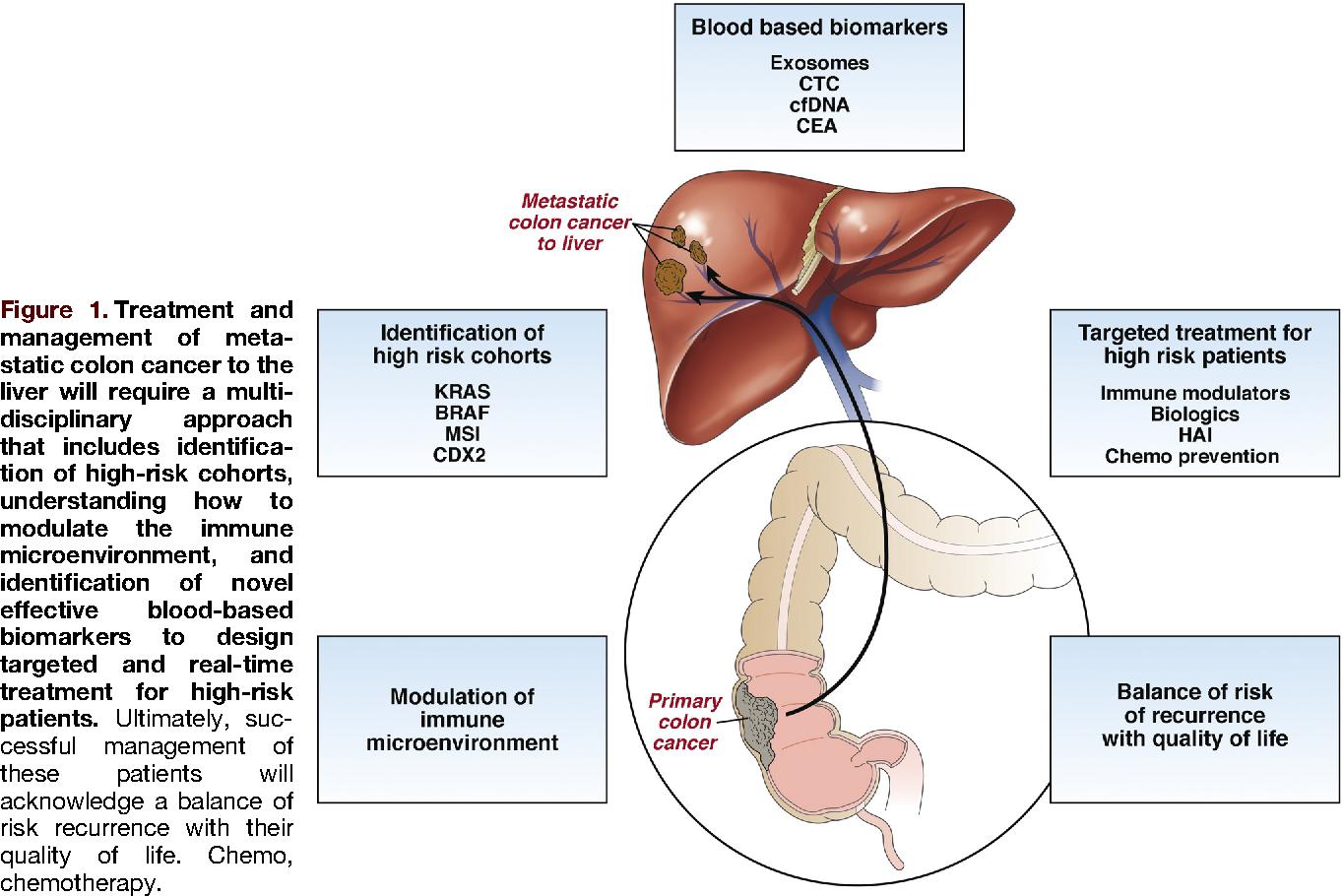 colorectal cancer hepatic metastasis)