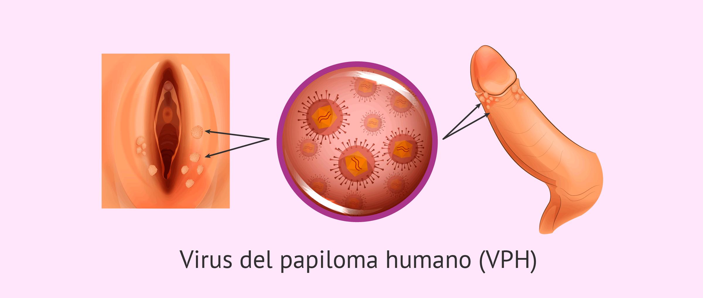 ?como es el virus del papiloma humano en la mujer imagenes