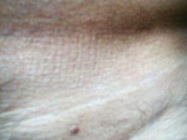 condyloma acuminata amboss human papillomavirus infection and vaccination in males