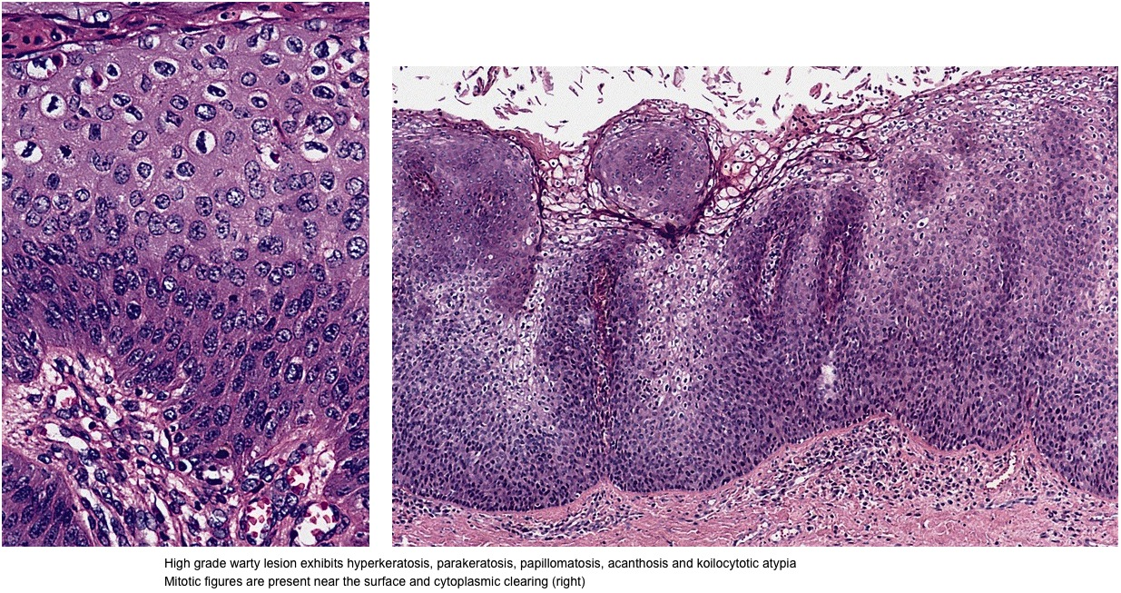 condyloma acuminata pathology outlines papilloma tumor in breast