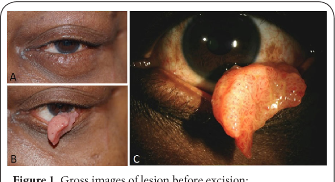 conjunctival papilloma eye