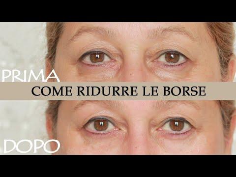 papilloma sotto occhio cancerul de esofag simptome