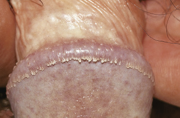 hpv genital diagnostico parasito oxiuros caracteristicas