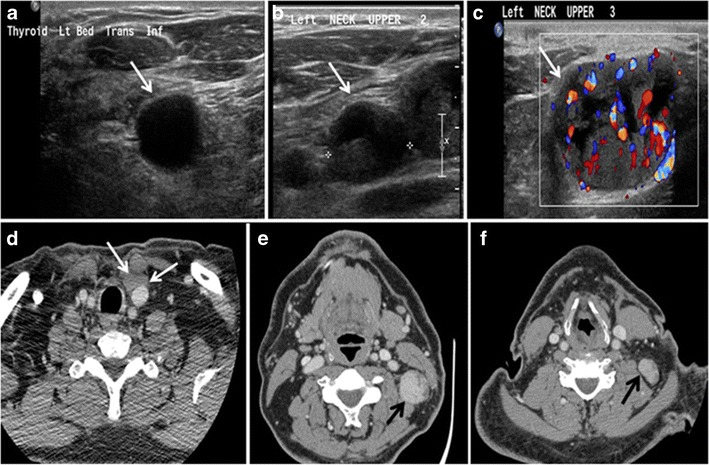papillary thyroid cancer ct