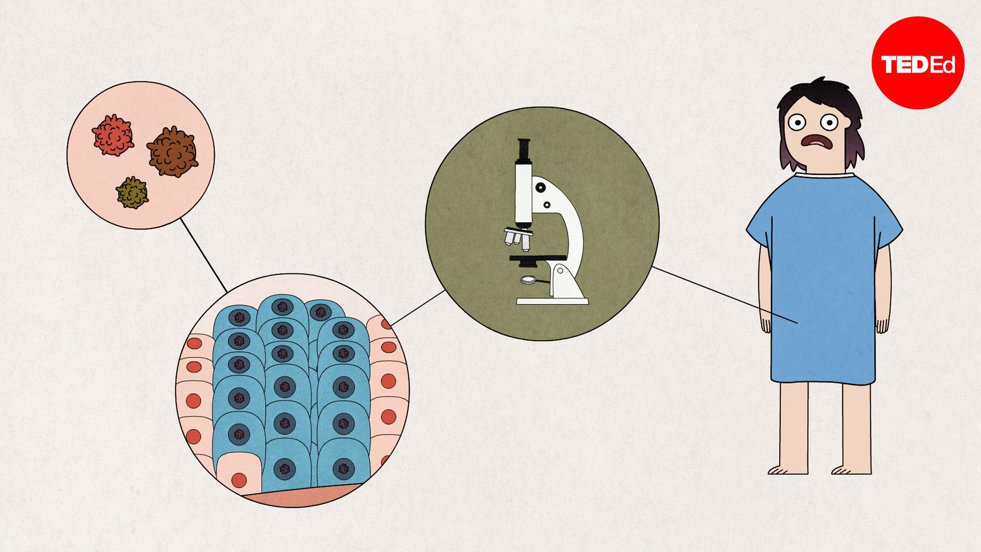 papilloma virus rimane per sempre