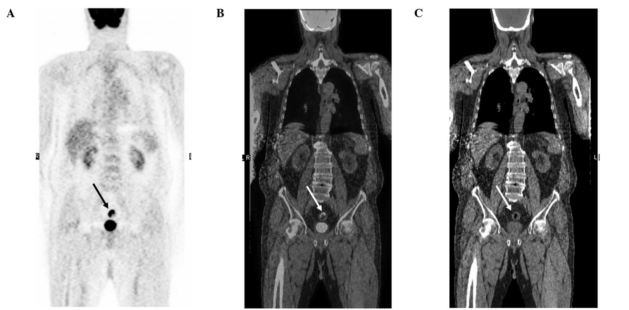 inverted papilloma treatment medscape