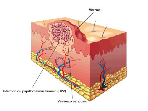 papillomavirus et traitement naturel