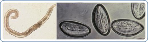 enterobius vermicularis location in the body)