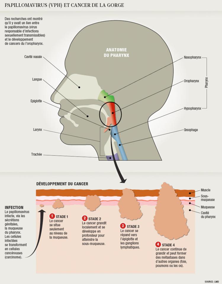 le papillomavirus et le cancer de la gorge)