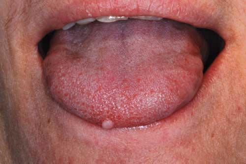 papilloma virus alla lingua)