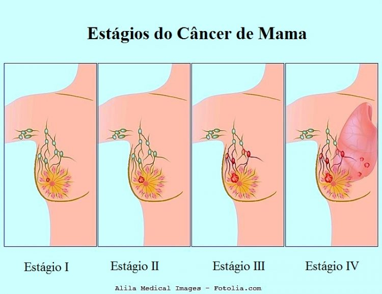 que es cancer invasivo)