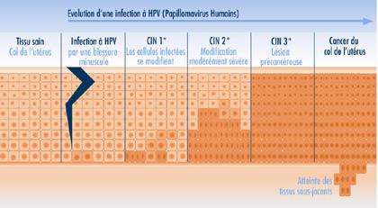 papillomavirus col de luterus traitement)
