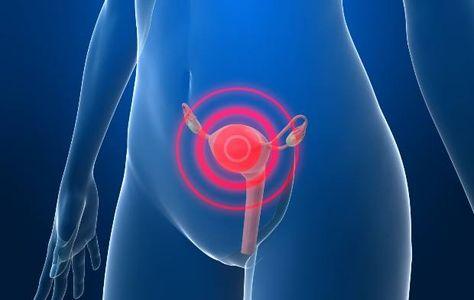 cancer de colo do utero