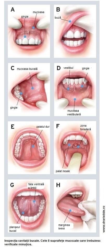 cancerul gurii simptome)