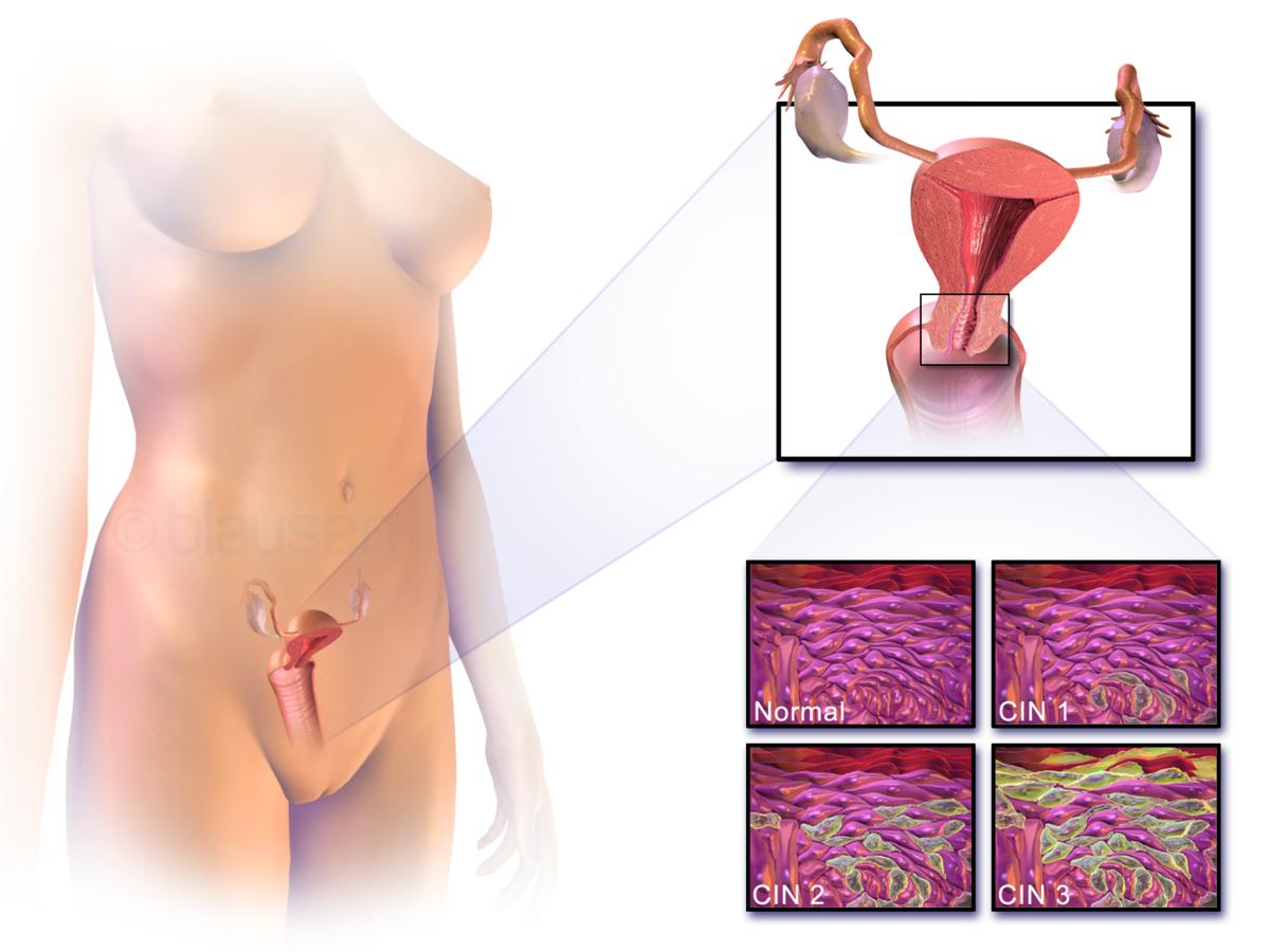 cervical cancer kaise hota hai)