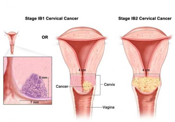 Boli dermatologice genitale la barbati