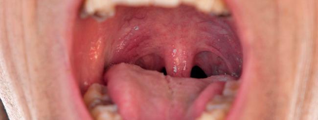imagen del papiloma humano en la boca