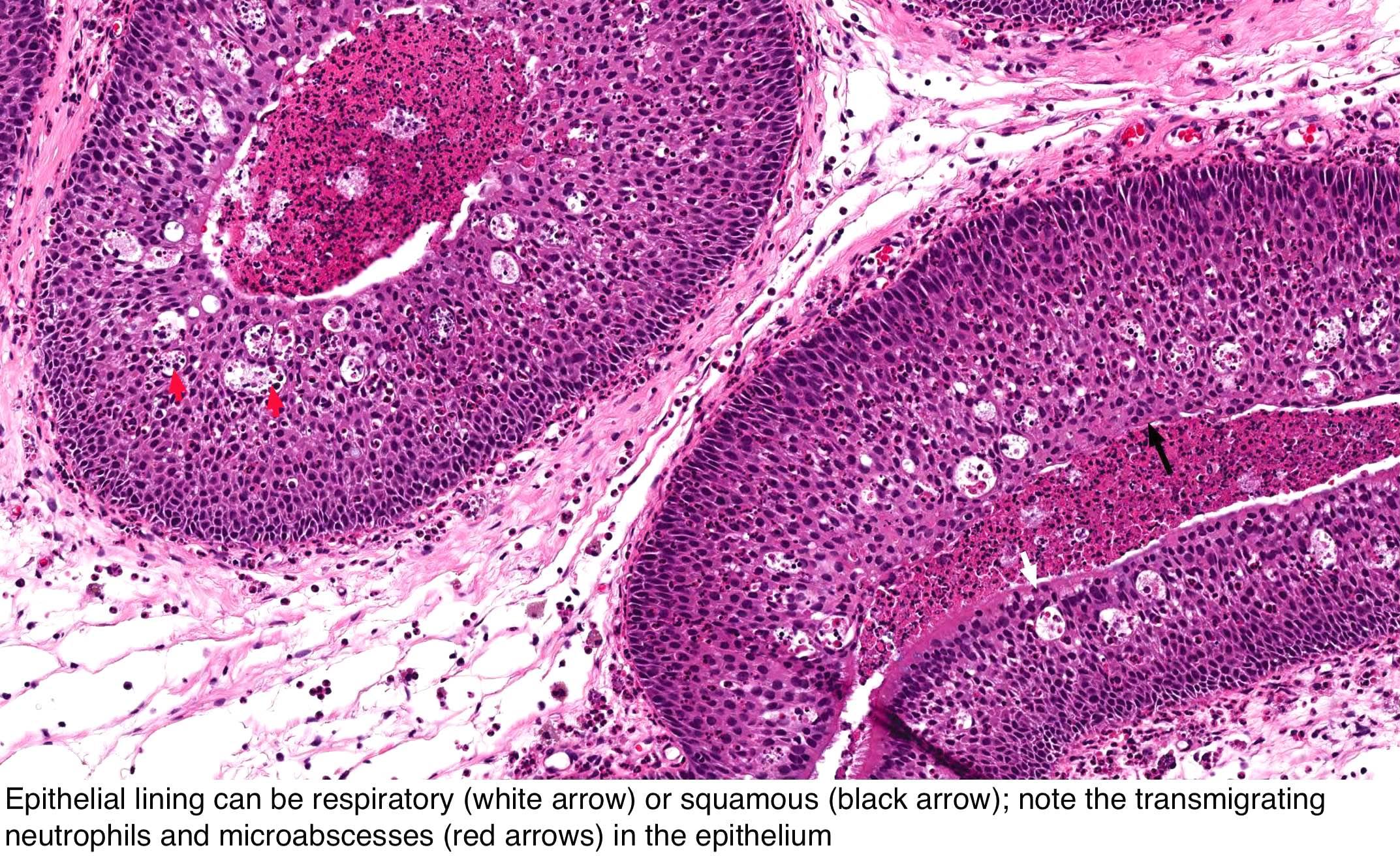 papilloma schneiderian nasal helmintox caureja