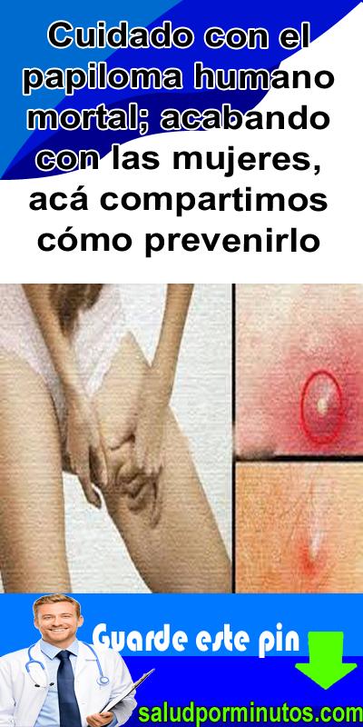 papiloma virus de la mujer