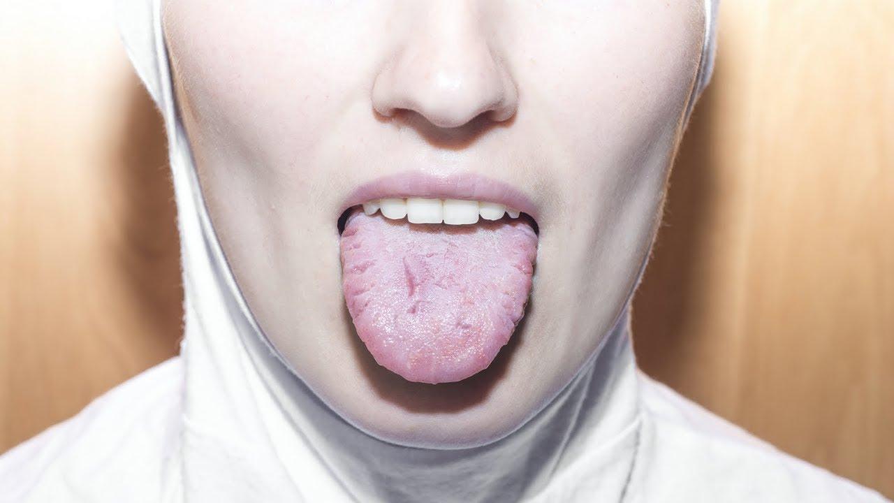 cancerul bucal simptome)