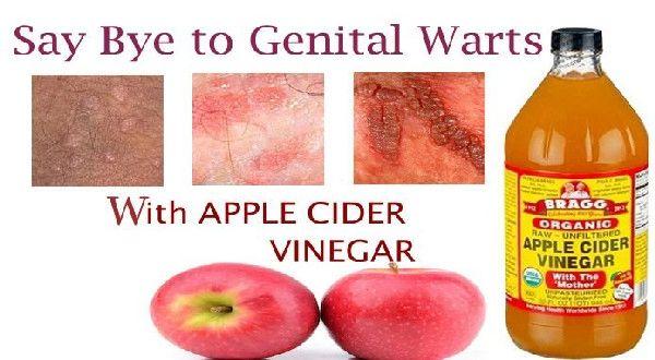 human papillomavirus infection apple cider vinegar)