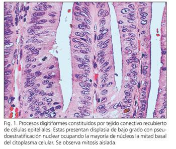 biopsie colon