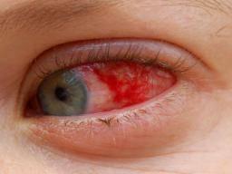 hpv red eye)