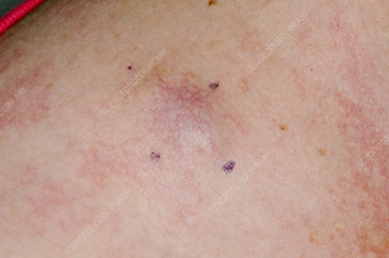 metastatic cancer and skin)