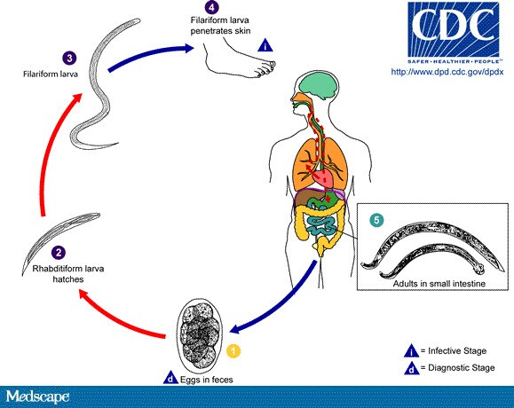 helminth infection in)