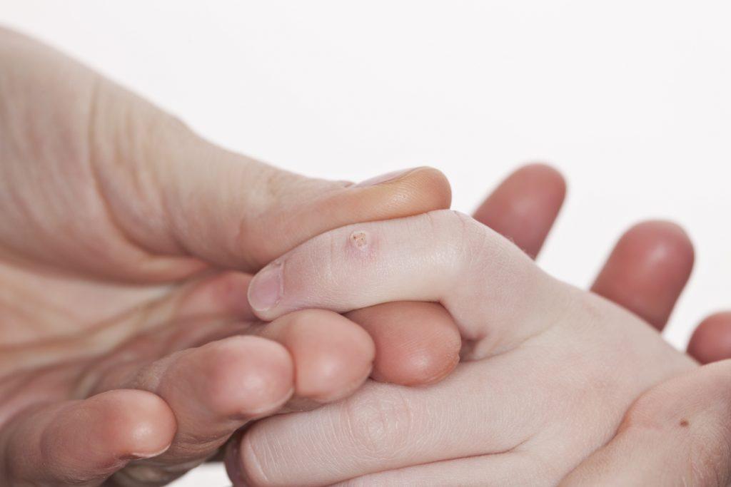 Tinctură de castane de aplicare varicele